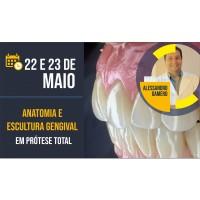 Curso | Anatomia e Escultura Gengival em Protese Total